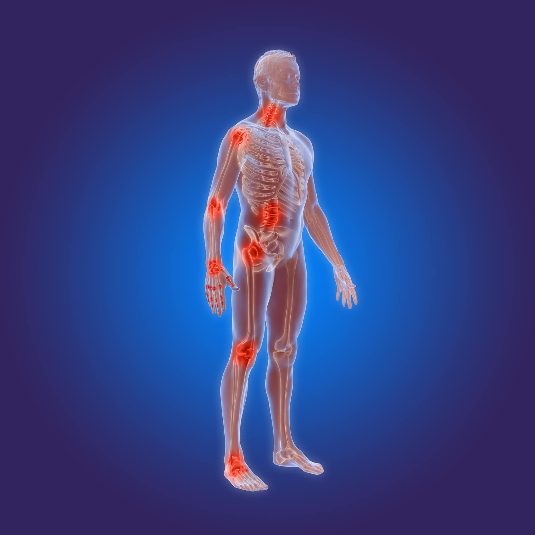 Arthritis Chiropractic - Greenbelt Wellness and Physical Therapy